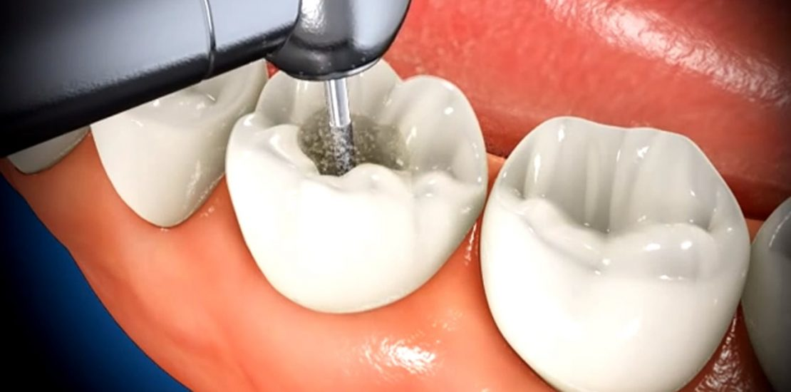 root canal treatment service in nairobi-min
